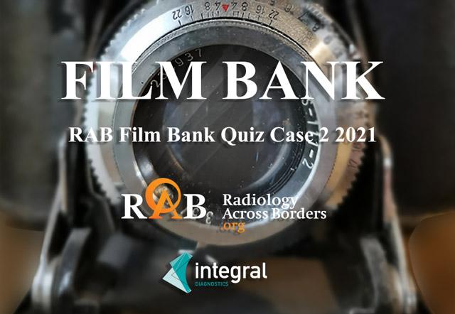 RAB Film Bank